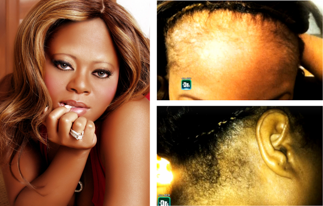 Countess-Vaughn-Reveals-Suffering-From-Scalp-Infections-Due-To-Lace-Wigs