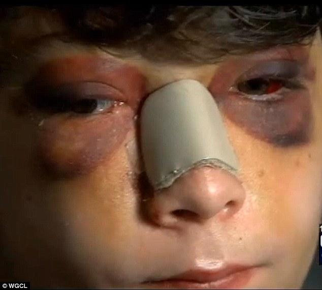 beat up child